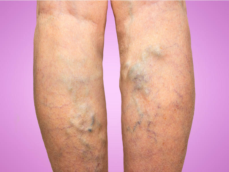 Home Remedies For Painful Varicose Veins Wavez